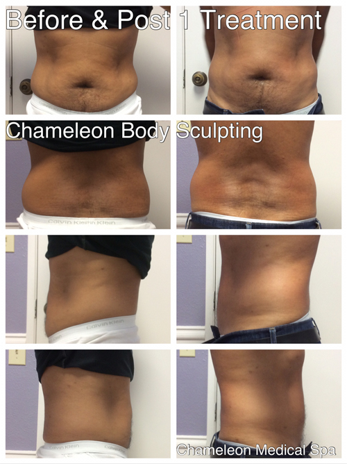Before & After PelleFirm® RF Body Treatment
