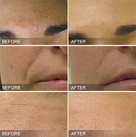 Hydrafacial® Before and After Dallas
