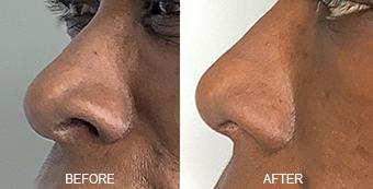Non-Surgical Nose Job Dallas